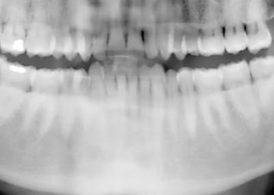 Ortopantomografía Sonrident